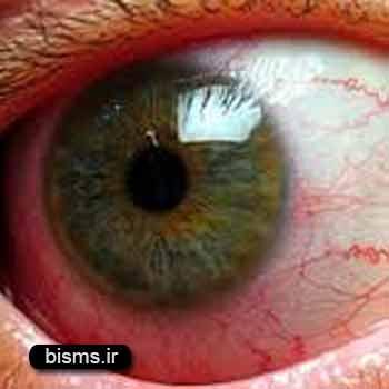 التهاب عنبيه،درمان التهاب عنبيه،علل التهاب عنبيه