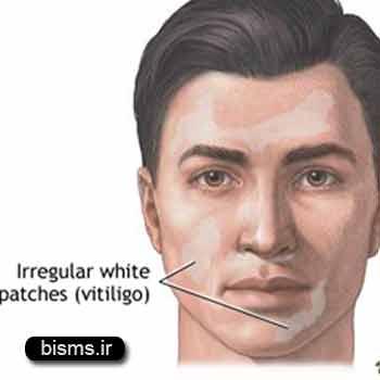 برجس،لک و پيس،ويتيليگو،درمان ویتیلیگو