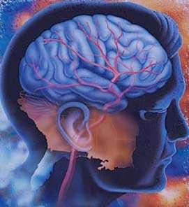 آشنایی با عوامل خطر سکته مغزی
