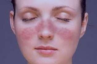 مشخصات و نشانه های بیماری لوپوس