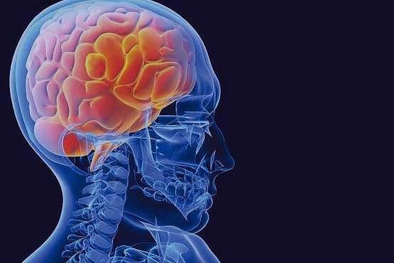 همه چیز درباره سکته مغزی