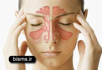 درمان نکردن آلرژی ازعوامل بروزپولیپ وسینوزیت است