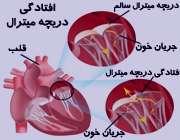پرولاپس(افتادگی)دریچه قلب:علل،علائم و عوارض آن