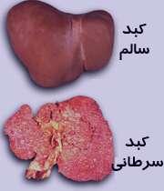 نکاتی دربارۀ سرطان کبد
