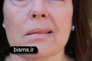 درمان فلج صورت به چه صورت؟