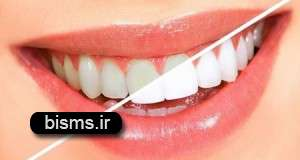 چند دلیل سیاه شدن دندان ها
