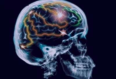 اگر از بیماری آلزایمر می ترسید این نکات را جدی بگیرید!