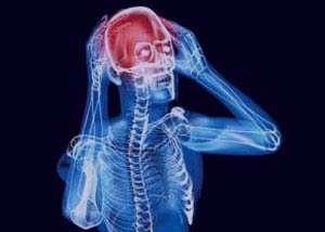 راه های پیشگیری از سردرد چیست