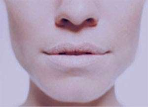 خشكی دهان چه پيامدهايی دارد