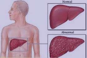 اطلاعات مفيد درباره بیماری کبد چرب