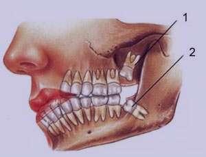چرا دندان عقل را بايد کشيد
