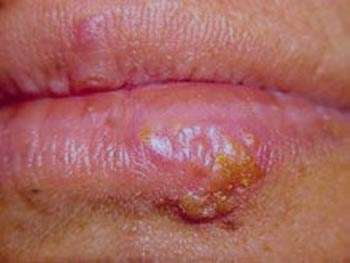 تبخال+درمان تب خال