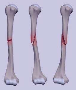 علائم شکستگی استخوان و راههای درمان