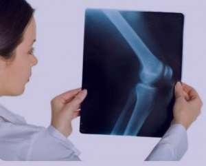 درمان زانو درد و با راهکارهای درمانی ساده و آسان