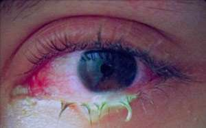 ترشحات زرد رنگ چشم علامت چیست؟