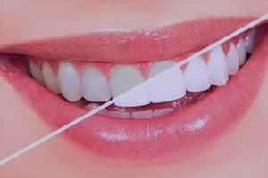 سفید کردن دندان در منزل
