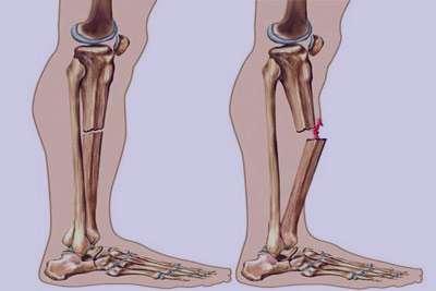 مشکلات ساقه بدن