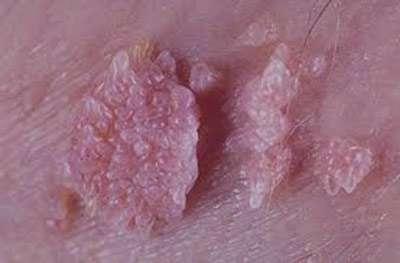 بیماری شانکرویید