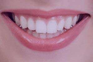 آموختن سفید کردن دندان