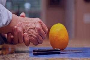 برای پیشگیری از عود بیماری روماتیسم ، چه کارهایی می توان انجام داد