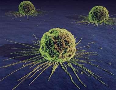 حقایقی جالب که بهتر است درباره سرطان بدانید