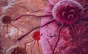 8 روش ساده برای پیشگیری از سرطان
