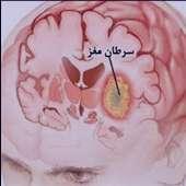 علائم سرطان مغز+راه درمان سرطان مغز؟