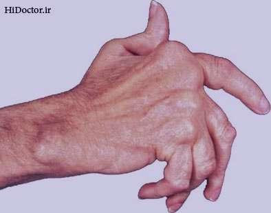 علائم و درمان بیماری آرتریت روماتوئید