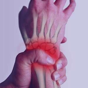 علت و درمان دست درد عصبی