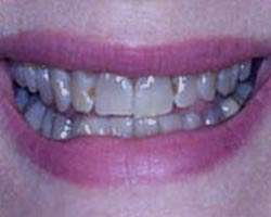 علت و درمان سیاهی دندان ها+رفع سیاه شدن دندان