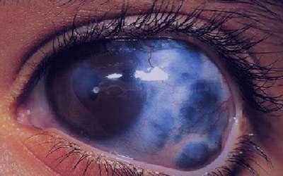 آب سیاه چشم چیست و آیا درمان می شود؟