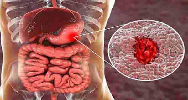 زخم معده , زخم معده چیست , زخم معده علائم , زخم معده و درمان آن , زخم معده رژیم غذایی