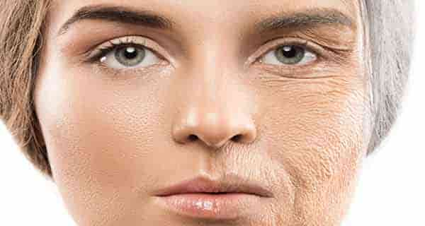 تعبیر خواب پوست ، تعبیر خواب پوست صورت ، تعبیر خواب پوست بدن ، تعبیر خواب پوست مار