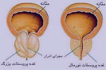 حنا در درمان پروستات , حنا پروستات , حنا و پروستات , حنا برای پروستات
