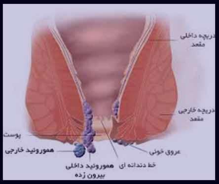 بواسیر ساچمه ای ، بواسیر ساچمه ای چیست ، درمان بواسیر ساچمه ای