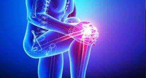 همه چیز در مورد علت و درمان درد مفاصل دست و پا و زانو