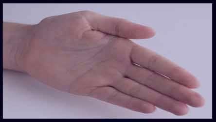 سرطان دست