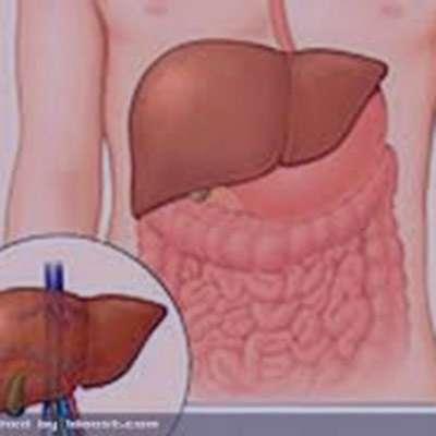 التهاب کبد
