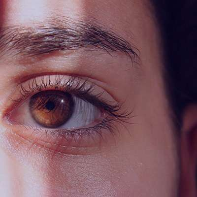 درد حدقه چشم