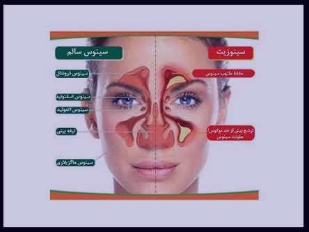 التهاب سینوس