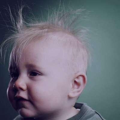 ریزش مو در کودکان