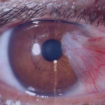 ناخنک چشم , ناخنک چشم چیست , ناخنک چشم , ناخنک چشم و درمان