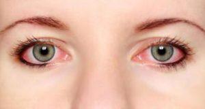 علت و علائم و درمان خانگی و گیاهی التهاب چشم نوزاد و کودکان