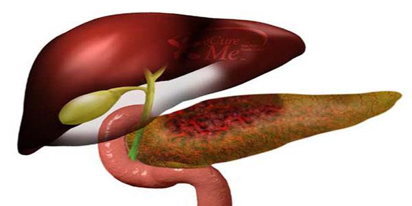 التهاب لوزالمعده , التهاب لوزالمعده و علائم آن , التهاب لوزالمعده علایم , التهاب لوزالمعده درمان گیاهی