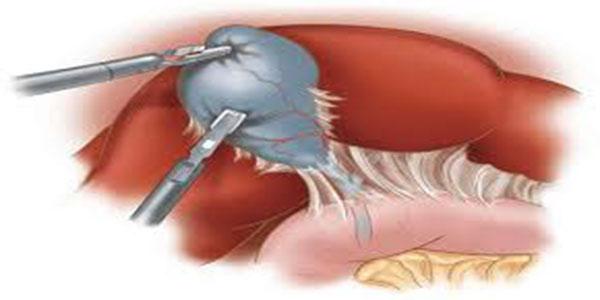 التهاب صفرا ,التهاب صفرا چیست,التهاب صفرا در بارداری,التهاب کیسه صفرا بدون سنگ