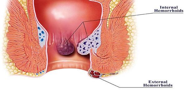 درمان بواسیر با طب سنتی