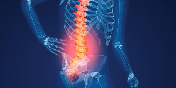 درد استخوان لگن , درد استخوان لگن سمت چپ , درد استخوان لگن در بارداری , درد استخوان لگن سمت راست