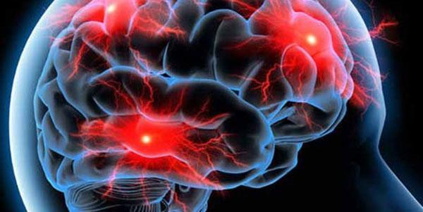 ضربه مغزی , ضربه مغزی و کما , ضربه مغزی چیست , ضربه مغزی در کودکان