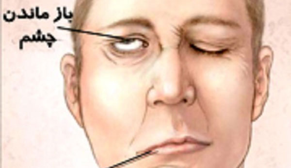 فلج عصب صورت , فلج عصب صورت و درمان , فلج عصب صورت در کودکان , فلج عصب صورت درمان