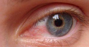 علت و درمان خانگی و فوری قرمزی چشم بعد از لنز چیست